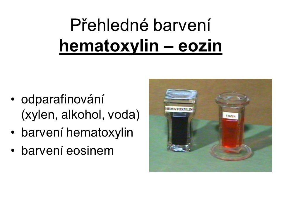 Přehledné barvení hematoxylin – eozin odparafinování (xylen, alkohol, voda) barvení hematoxylin barvení eosinem