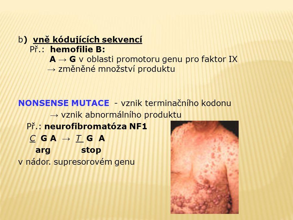b) vně kódujících sekvencí Př.: hemofilie B: A → G v oblasti promotoru genu pro faktor IX → změněné množství produktu NONSENSE MUTACE - vznik terminač