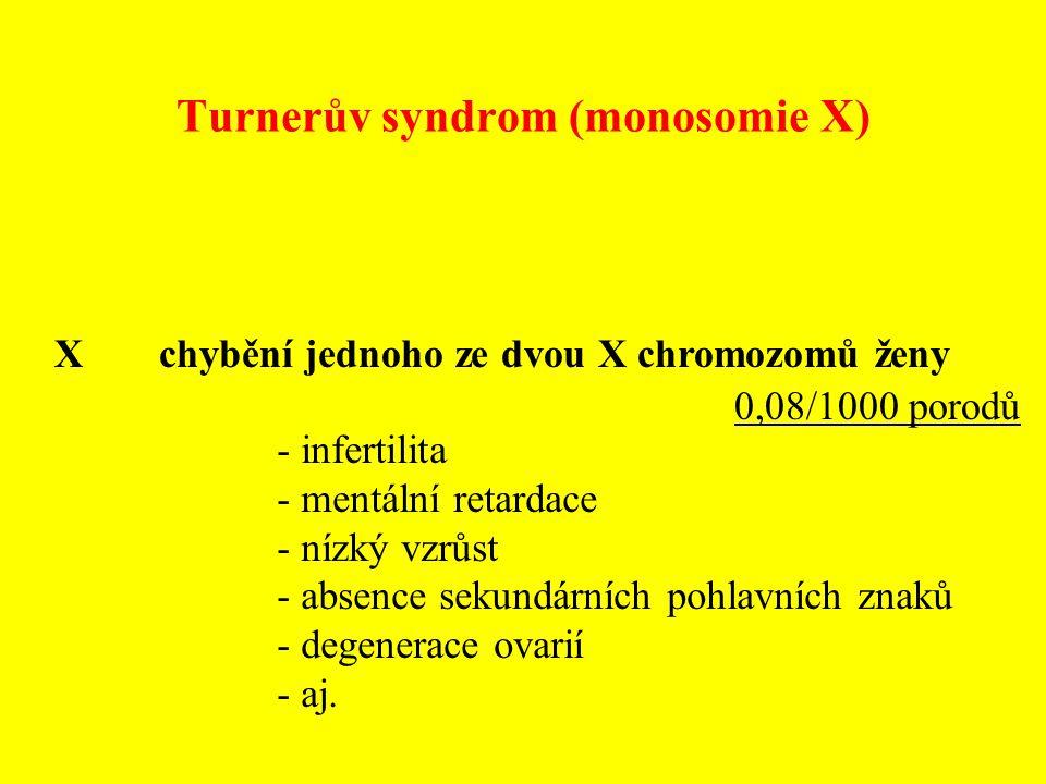 Turnerův syndrom (monosomie X) X chybění jednoho ze dvou X chromozomů ženy - infertilita - mentální retardace - nízký vzrůst - absence sekundárních po