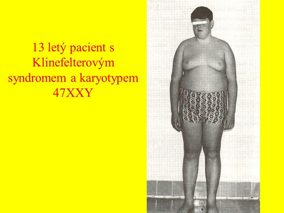 13 letý pacient s Klinefelterovým syndromem a karyotypem 47XXY