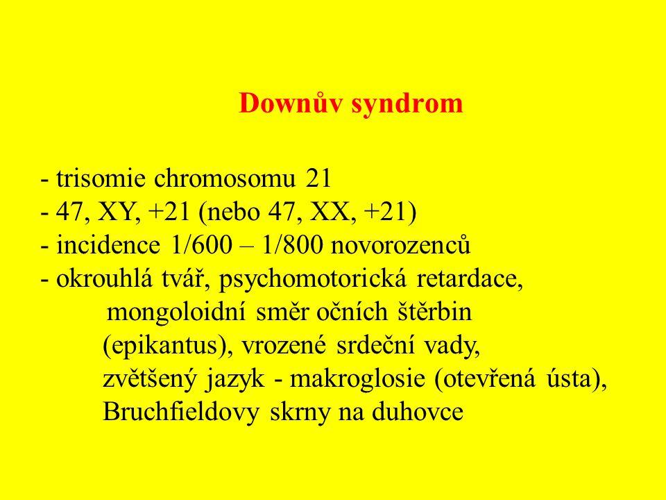 Downův syndrom - trisomie chromosomu 21 - 47, XY, +21 (nebo 47, XX, +21) - incidence 1/600 – 1/800 novorozenců - okrouhlá tvář, psychomotorická retard