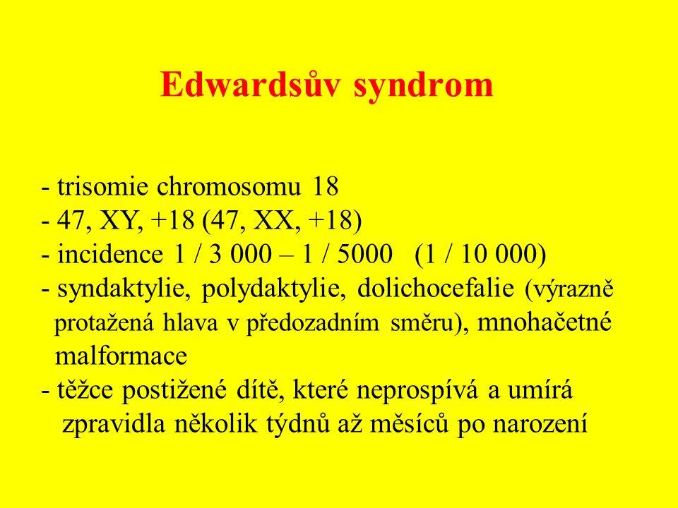 Edwardsův syndrom - trisomie chromosomu 18 - 47, XY, +18 (47, XX, +18) - incidence 1 / 3 000 – 1 / 5000 (1 / 10 000) - syndaktylie, polydaktylie, doli