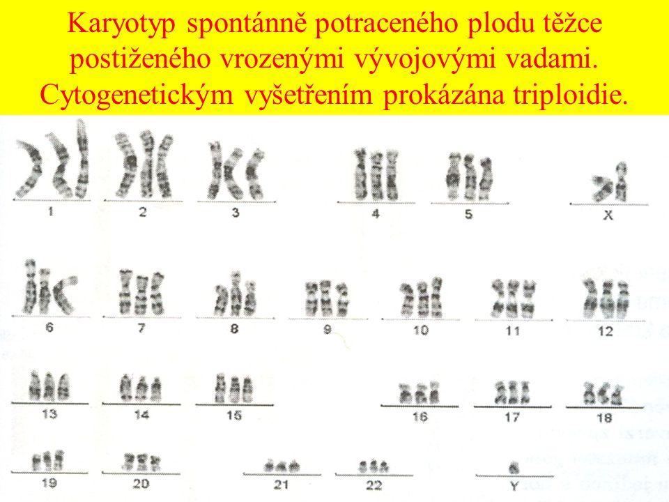 Karyotyp spontánně potraceného plodu těžce postiženého vrozenými vývojovými vadami. Cytogenetickým vyšetřením prokázána triploidie.