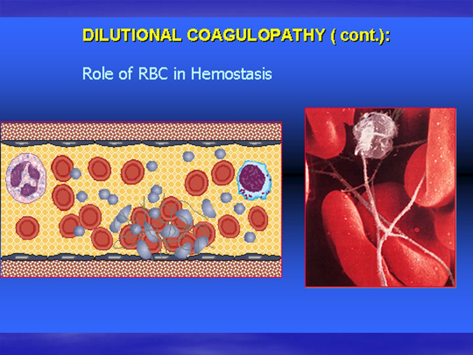 RBC and platelets adhesion & aggregation D. Varon with permission CPA adhesion & aggregation