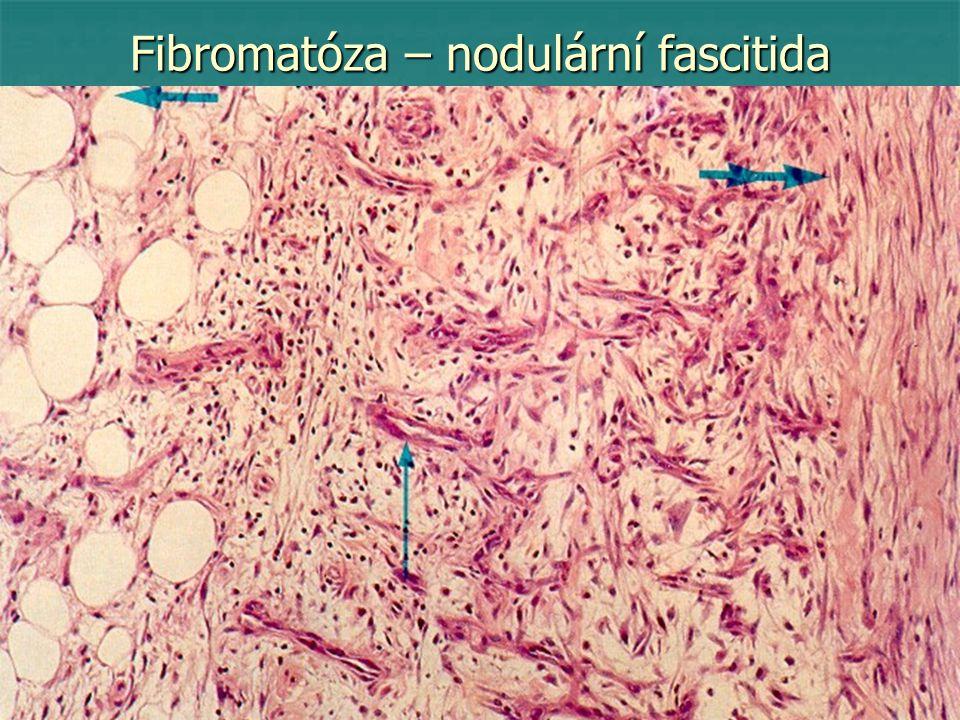 Fibromatóza – nodulární fascitida