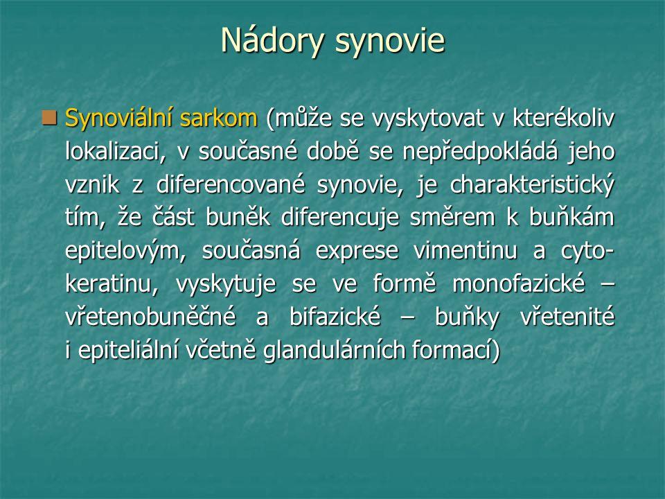 Nádory synovie Synoviální sarkom (může se vyskytovat v kterékoliv lokalizaci, v současné době se nepředpokládá jeho vznik z diferencované synovie, je