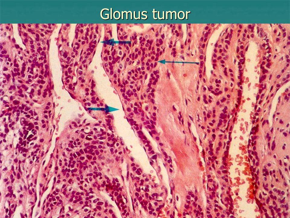 Glomus tumor