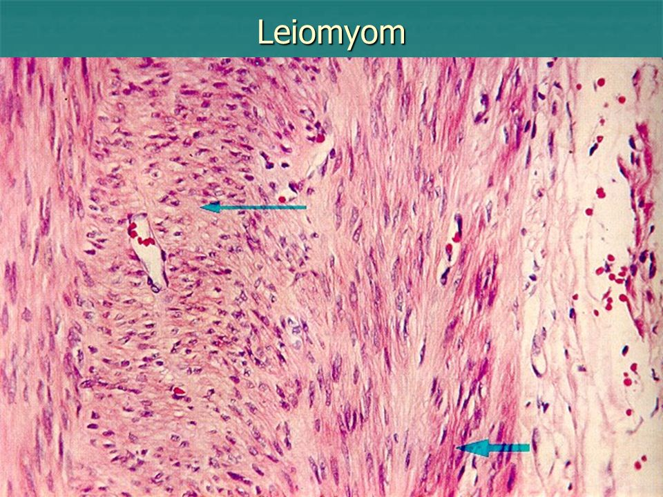 Leiomyom