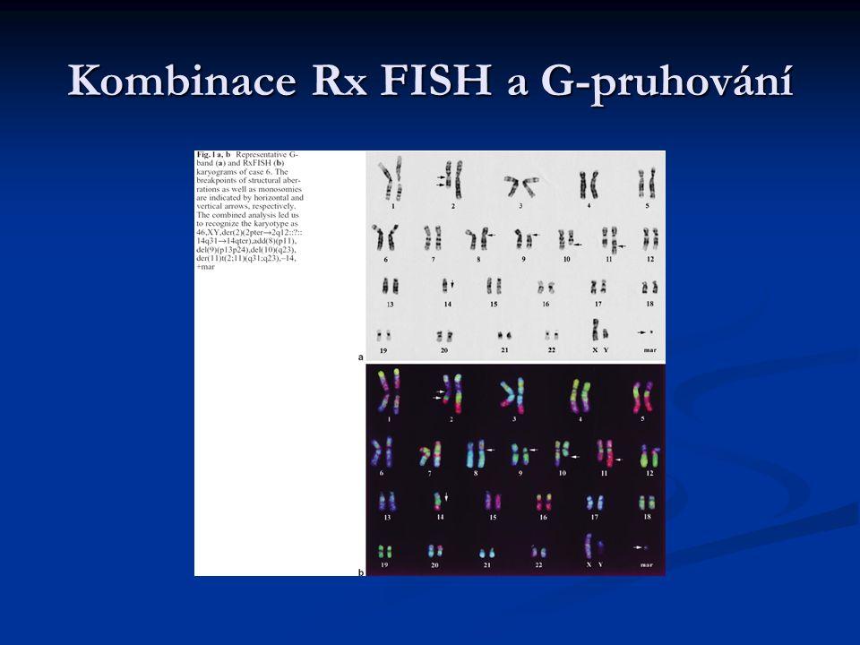 Aplikace Rx FISH - vůbec první využití k popisu chromozomálních přesmyků v nádorech u T-prolymfocytární leukémie - T-lymfocyty mají charakteristickou morfologii, velmi časté jsou abnormality karyotypu – obvykle komplexy s mnohonásobnými přesmyky inv(14)(q11,q32)t(14,14)(q11,q32)t(X,14)(q28,q11)i(8)(q10)t(8,8)(p21,q11)