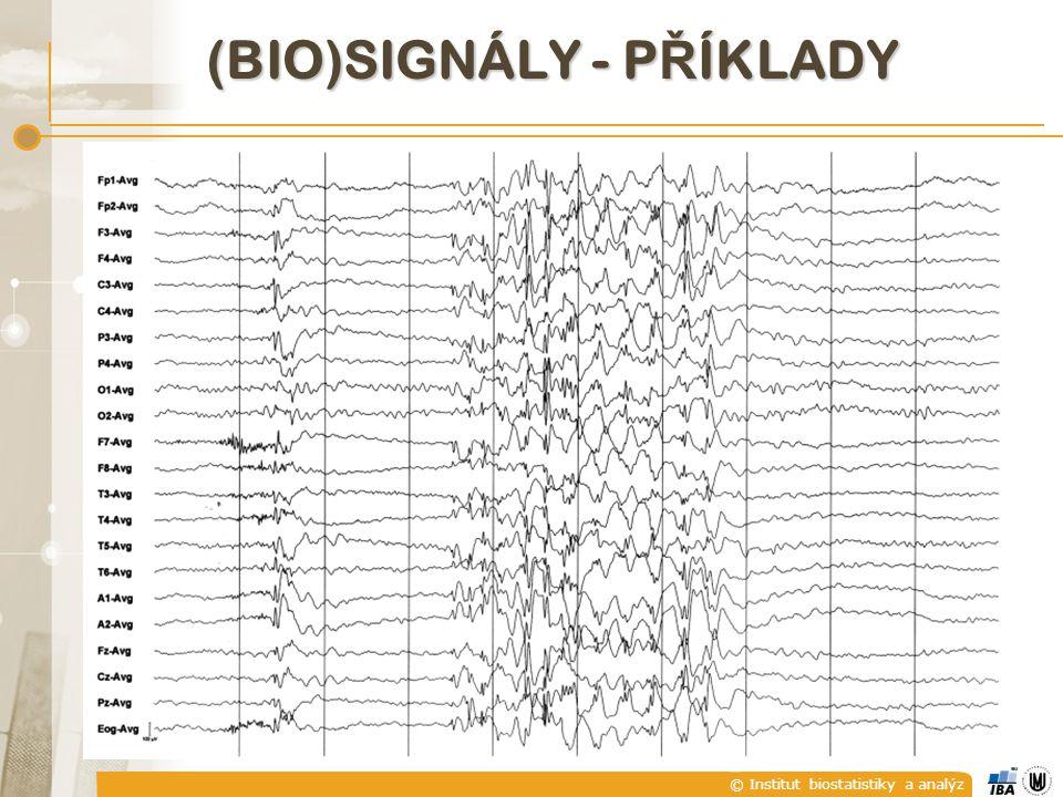 © Institut biostatistiky a analýz A) SPOJITÉ A DISKRÉTNÍ SIGNÁLY  U diskrétního signálu není hodnota signálu mezi jednotlivými diskrétními časovými okamžiky definována.