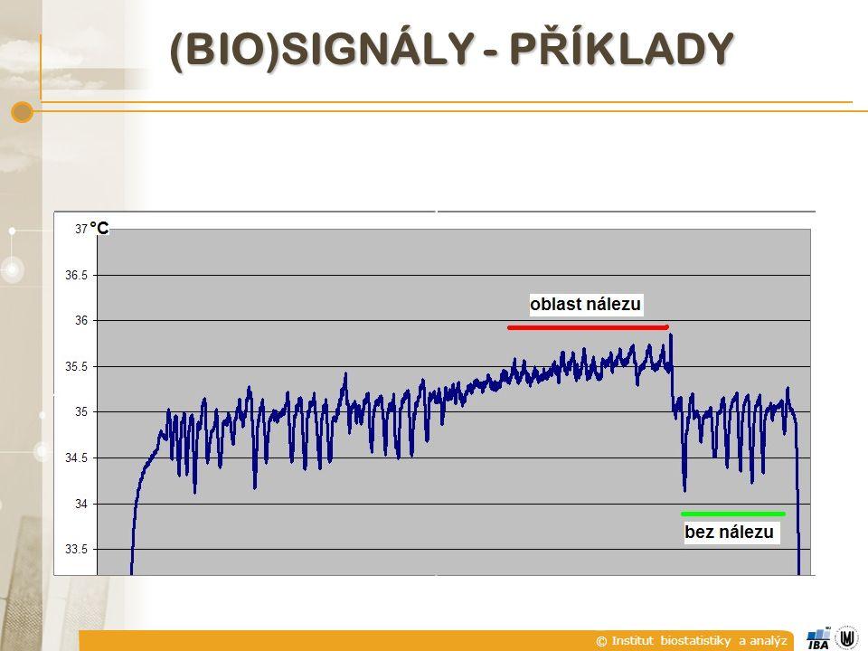 © Institut biostatistiky a analýz A) SPOJITÉ A DISKRÉTNÍ SIGNÁLY  explicitně seznamem hodnot, např.