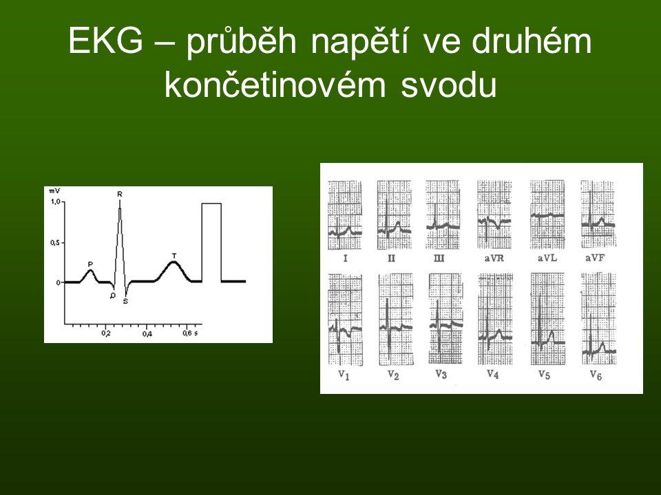 EKG – průběh napětí ve druhém končetinovém svodu