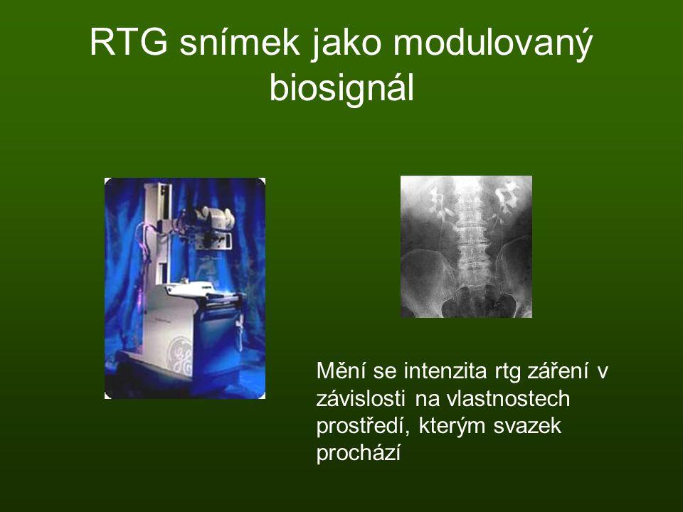 RTG snímek jako modulovaný biosignál Mění se intenzita rtg záření v závislosti na vlastnostech prostředí, kterým svazek prochází