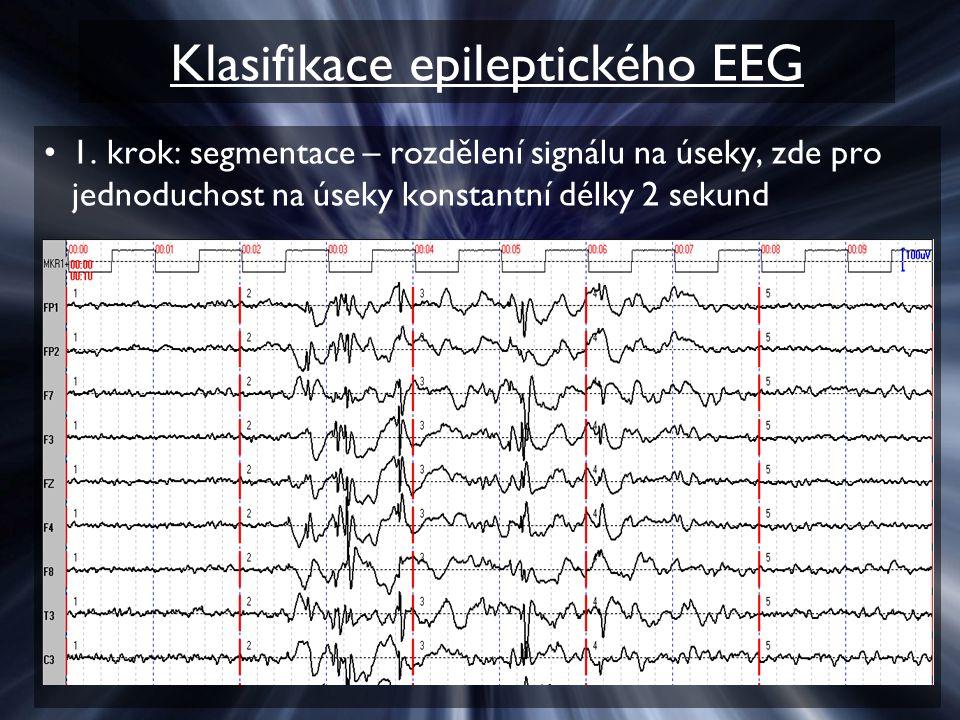 Klasifikace epileptického EEG 1. krok: segmentace – rozdělení signálu na úseky, zde pro jednoduchost na úseky konstantní délky 2 sekund