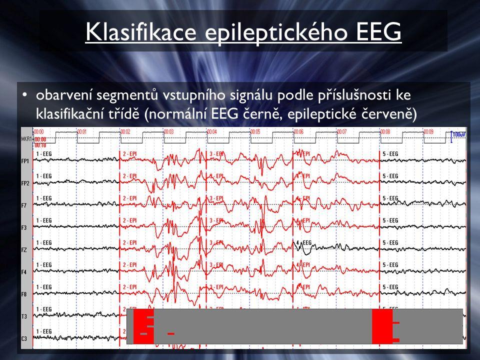 Klasifikace epileptického EEG obarvení segmentů vstupního signálu podle příslušnosti ke klasifikační třídě (normální EEG černě, epileptické červeně)