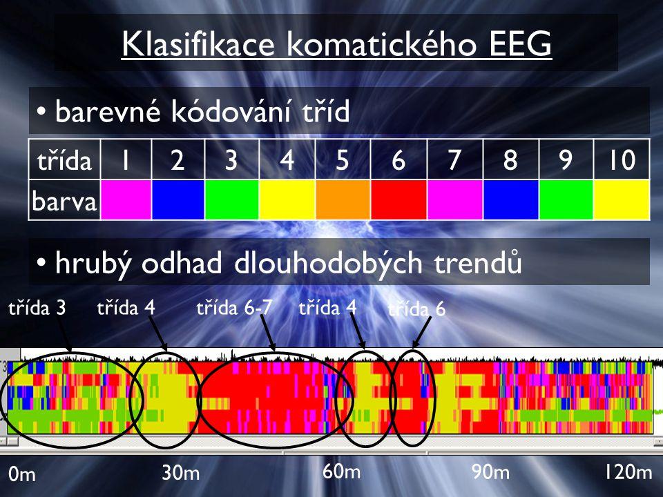 Klasifikace komatického EEG barevné kódování tříd třída12345678910 barva hrubý odhad dlouhodobých trendů 0m 60m 30m 90m120m třída 3 třída 4třída 6-7tř
