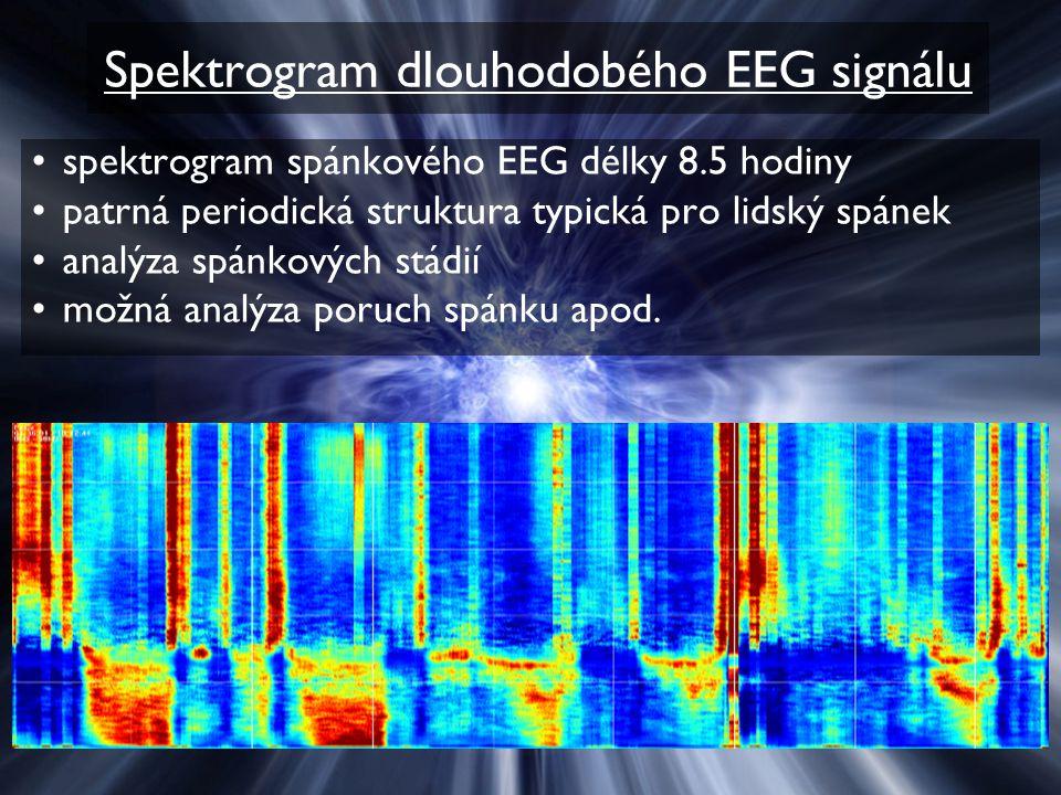 Spektrogram dlouhodobého EEG signálu spektrogram spánkového EEG délky 8.5 hodiny patrná periodická struktura typická pro lidský spánek analýza spánkov