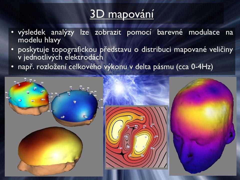3D mapování výsledek analýzy lze zobrazit pomocí barevné modulace na modelu hlavy poskytuje topografickou představu o distribuci mapované veličiny v j
