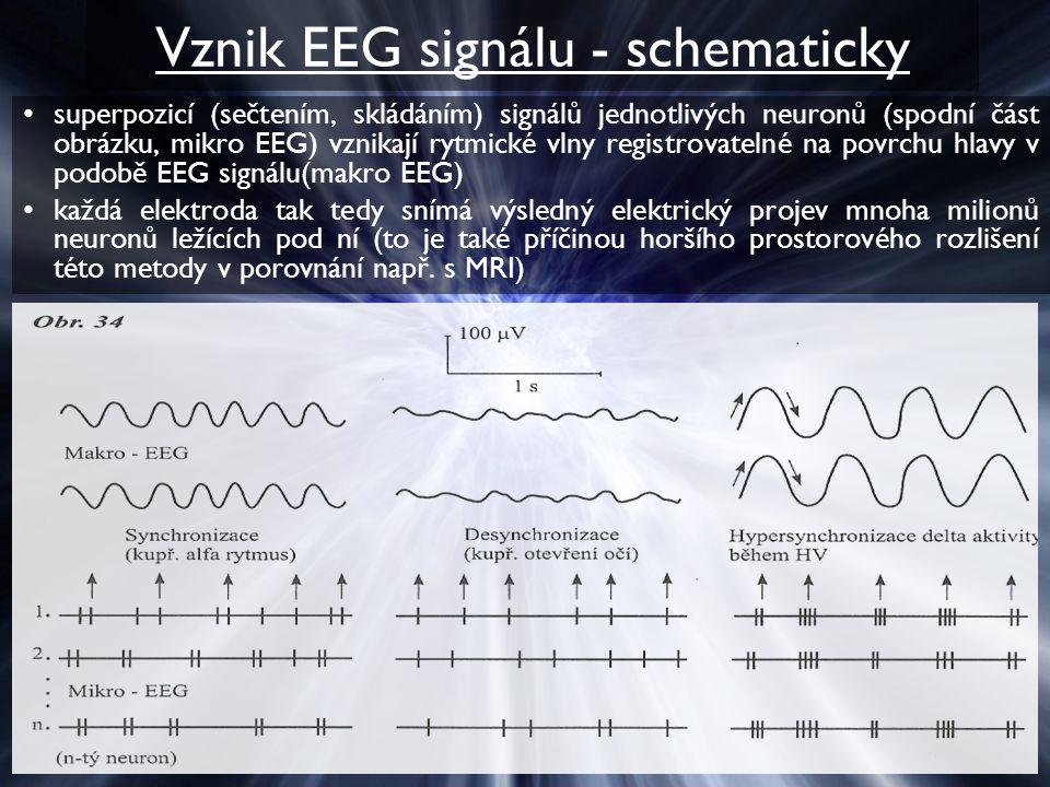Vznik EEG signálu - schematicky superpozicí (sečtením, skládáním) signálů jednotlivých neuronů (spodní část obrázku, mikro EEG) vznikají rytmické vlny