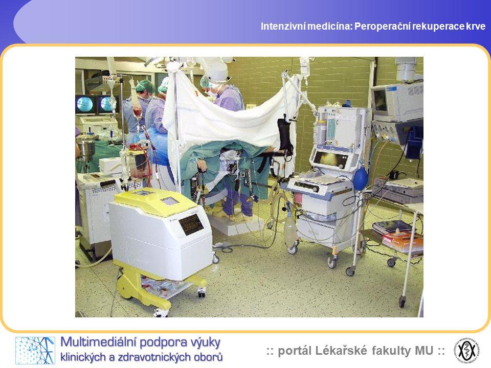 :: portál Lékařské fakulty MU :: Intenzivní medicína: Peroperační rekuperace krve