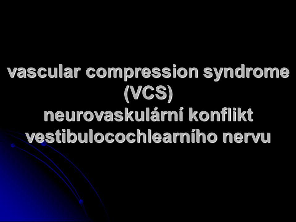 vascular compression syndrome (VCS) neurovaskulární konflikt vestibulocochlearního nervu