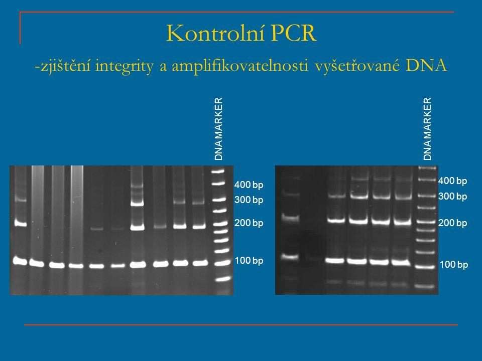 Kontrolní PCR -zjištění integrity a amplifikovatelnosti vyšetřované DNA DNA MARKER 100 bp 200 bp 300 bp 400 bp 100 bp 200 bp 300 bp 400 bp