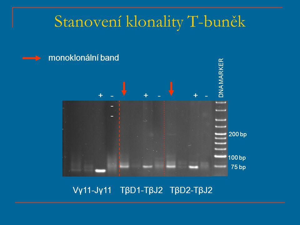 Stanovení klonality T-buněk 75 bp 100 bp 200 bp + ++------ --- DNA MARKER Vγ11-Jγ11TβD1-TβJ2TβD2-TβJ2 monoklonální band