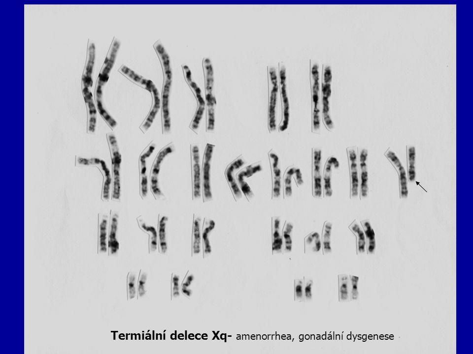 Termiální delece Xq- amenorrhea, gonadální dysgenese