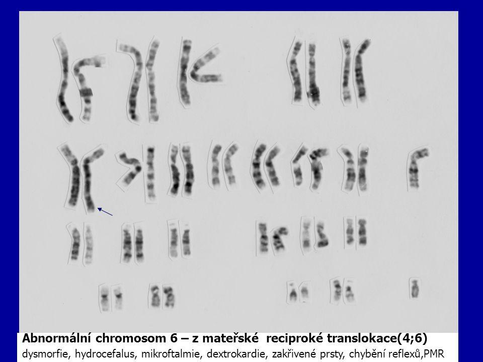 Abnormální chromosom 6 – z mateřské reciproké translokace(4;6) dysmorfie, hydrocefalus, mikroftalmie, dextrokardie, zakřivené prsty, chybění reflexů,P