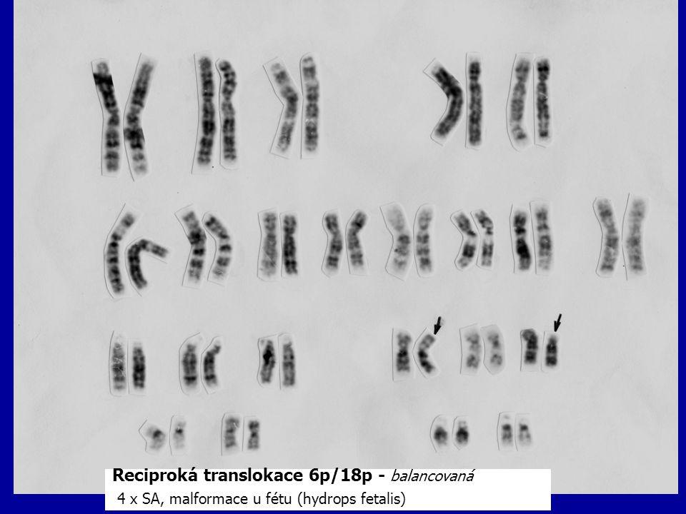 Reciproká translokace 6p/18p - balancovaná 4 x SA, malformace u fétu (hydrops fetalis)