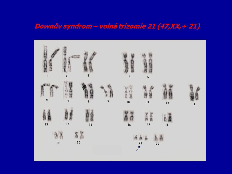 """Syndrom fragilního X = X vázaná mentální retardace - 1:1500 mužů cytogenetická manifestace –"""" fragile site Xq27.3 = FRAXA Klinické příznaky: MR, makroorchidismus protáhlý obličej, velká mandibula,velké uši matky postižených mužů = nosičky ale: 30% žen-nosiček mentálně retardovaných 20% fra X mužů mentálně normálních zhoršování příznaků s generace na generaci (paradox Shermanové)"""