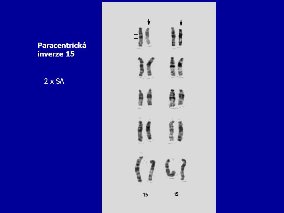 Paracentrická inverze 15 2 x SA