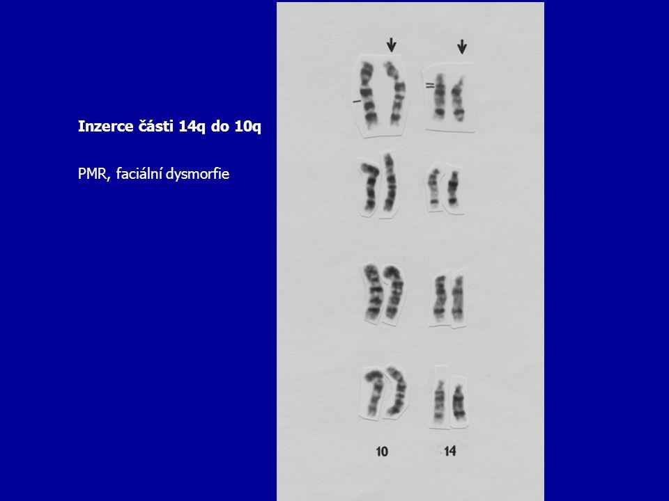 Inzerce části 14q do 10q PMR, faciální dysmorfie