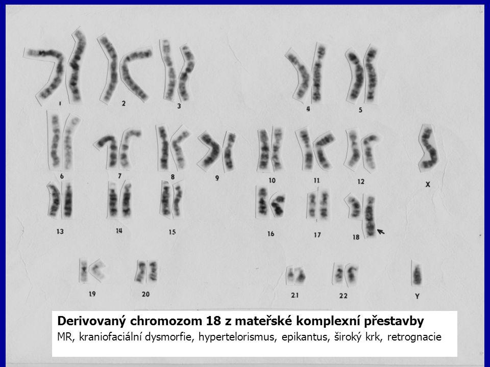 Derivovaný chromozom 18 z mateřské komplexní přestavby MR, kraniofaciální dysmorfie, hypertelorismus, epikantus, široký krk, retrognacie
