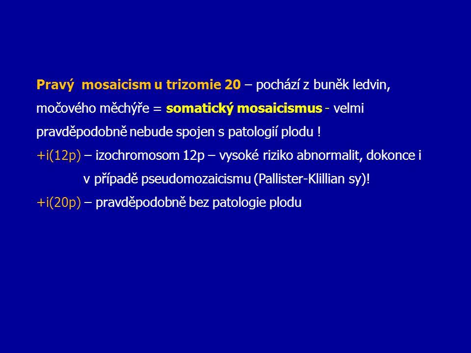 Pravý mosaicism u trizomie 20 – pochází z buněk ledvin, močového měchýře = somatický mosaicismus - velmi pravděpodobně nebude spojen s patologií plodu