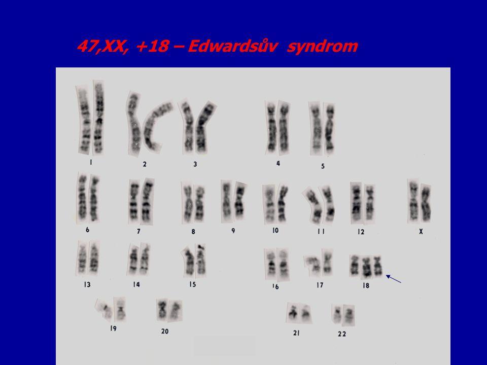 47,XX +13 – Patauův syndrom