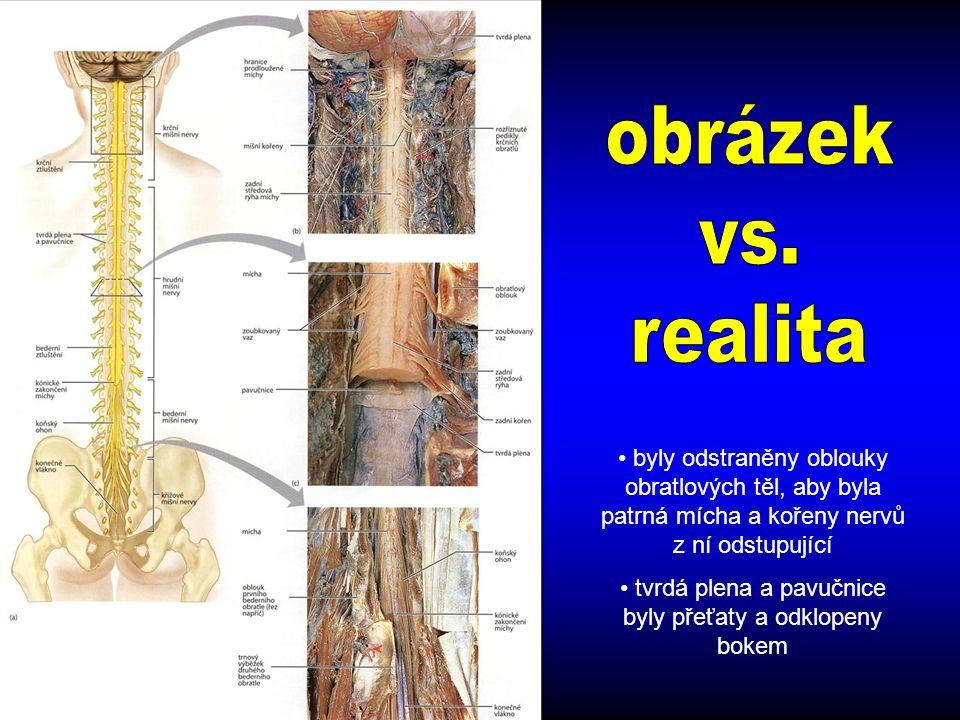 byly odstraněny oblouky obratlových těl, aby byla patrná mícha a kořeny nervů z ní odstupující tvrdá plena a pavučnice byly přeťaty a odklopeny bokem