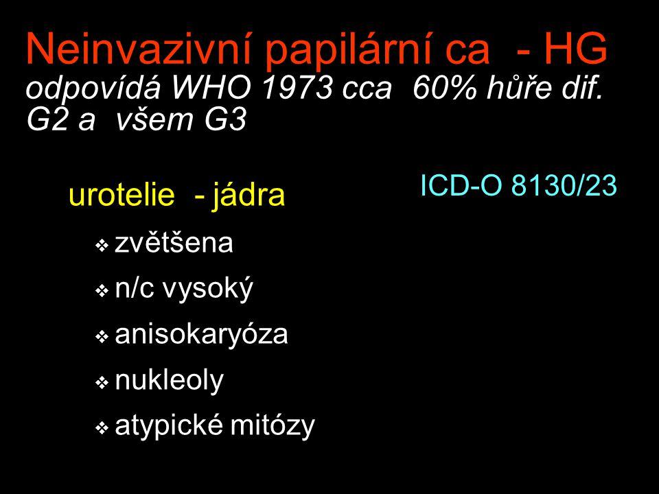 Neinvazivní papilární ca - HG odpovídá WHO 1973 cca 60% hůře dif. G2 a všem G3 urotelie - jádra  zvětšena  n/c vysoký  anisokaryóza  nukleoly  at