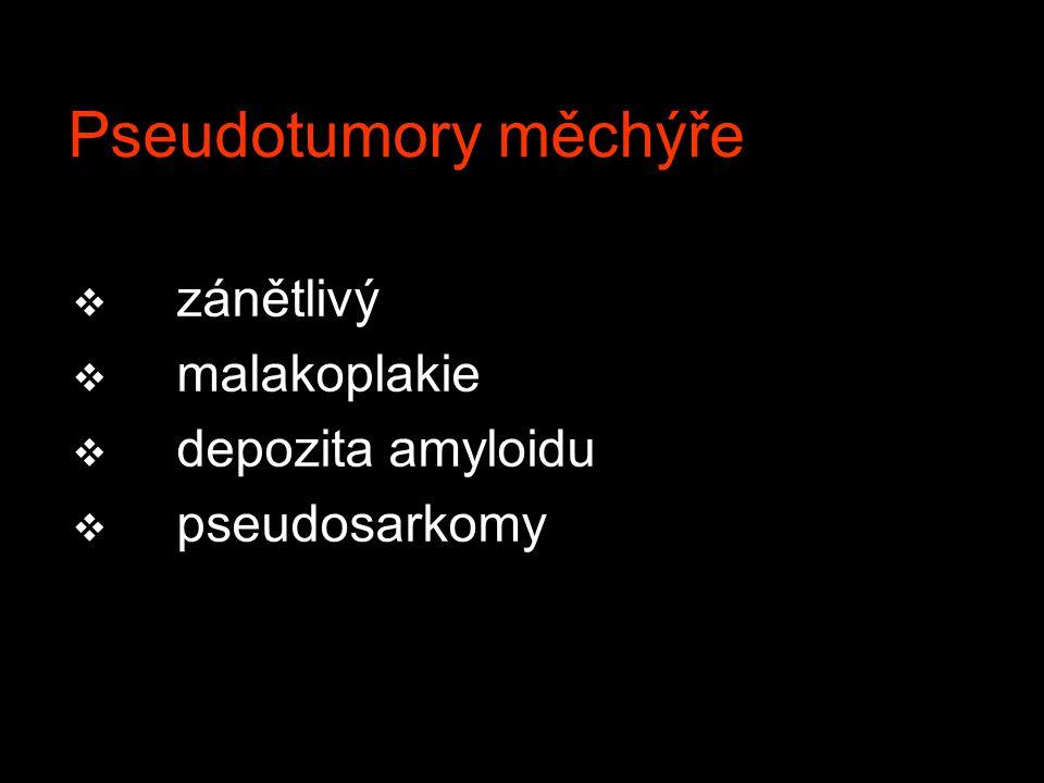 Pseudotumory měchýře v zánětlivý v malakoplakie v depozita amyloidu v pseudosarkomy