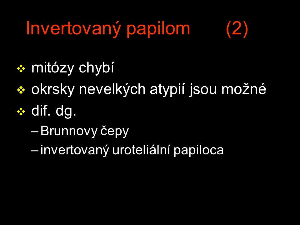 Invertovaný papilom (2) v mitózy chybí v okrsky nevelkých atypií jsou možné v dif. dg. –Brunnovy čepy –invertovaný uroteliální papiloca