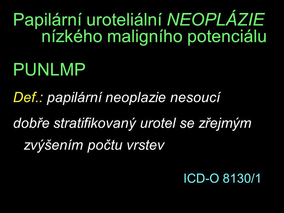 Papilární uroteliální NEOPLÁZIE nízkého maligního potenciálu PUNLMP Def.: papilární neoplazie nesoucí dobře stratifikovaný urotel se zřejmým zvýšením