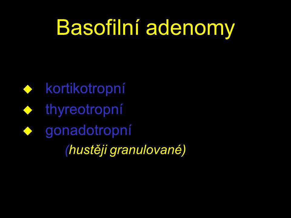 Basofilní adenomy u kortikotropní u thyreotropní u gonadotropní (hustěji granulované)