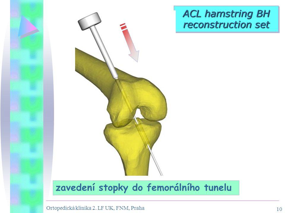 Ortopedická klinika 2. LF UK, FNM, Praha 10 ACL hamstring BH reconstruction set zavedení stopky do femorálního tunelu