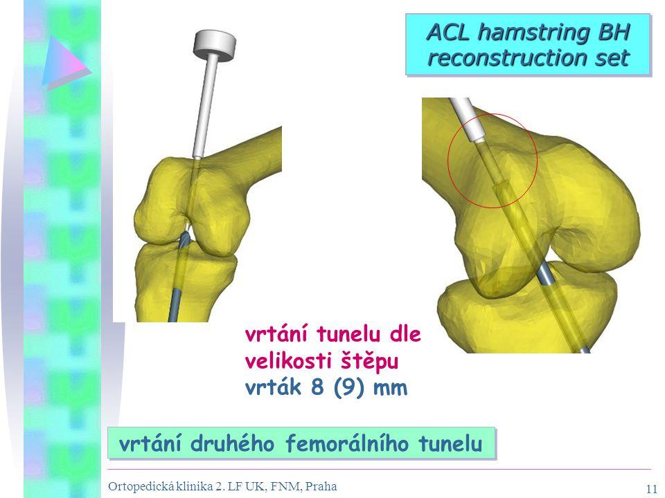 Ortopedická klinika 2. LF UK, FNM, Praha 11 vrtání tunelu dle velikosti štěpu vrták 8 (9) mm ACL hamstring BH reconstruction set vrtání druhého femorá