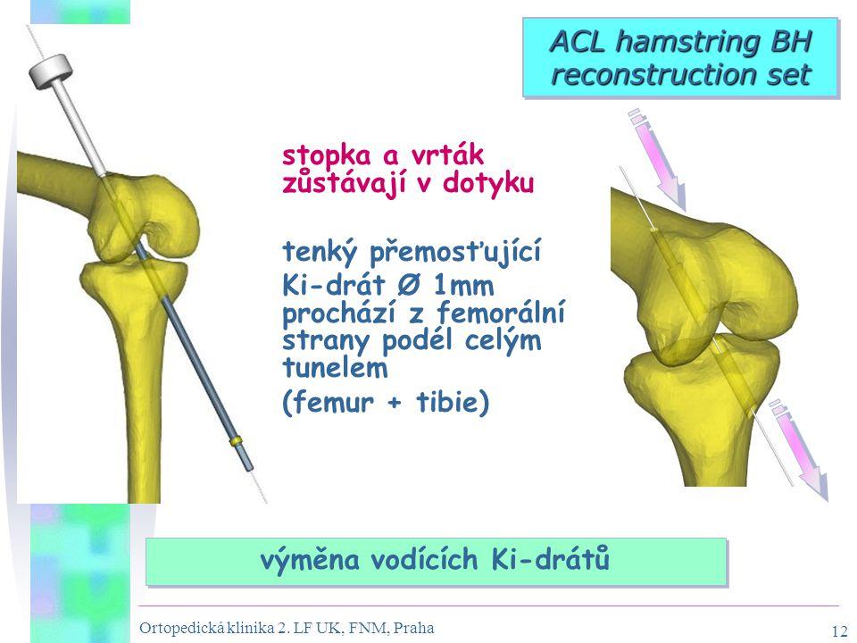 Ortopedická klinika 2. LF UK, FNM, Praha 12 výměna vodících Ki-drátů ACL hamstring BH reconstruction set stopka a vrták zůstávají v dotyku tenký přemo