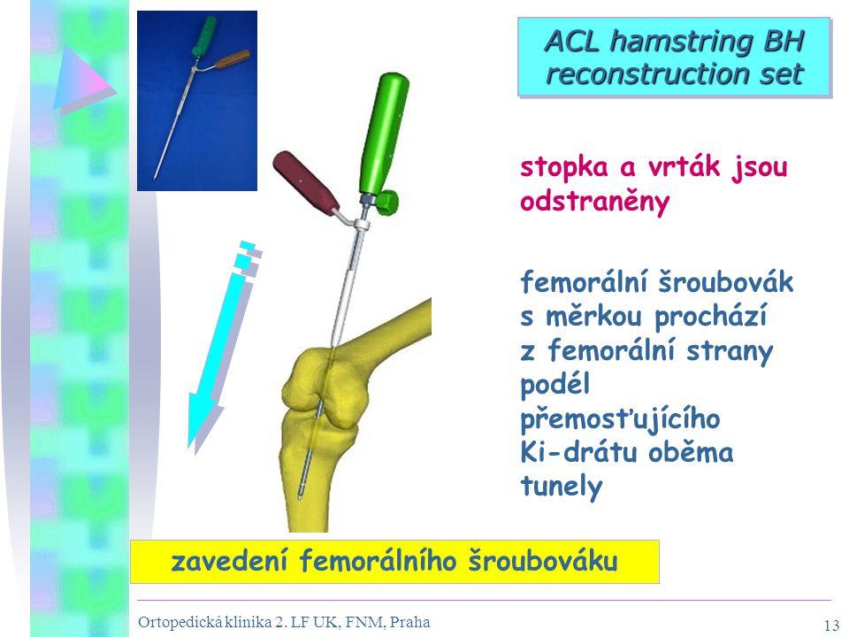 Ortopedická klinika 2. LF UK, FNM, Praha 13 ACL hamstring BH reconstruction set zavedení femorálního šroubováku stopka a vrták jsou odstraněny femorál