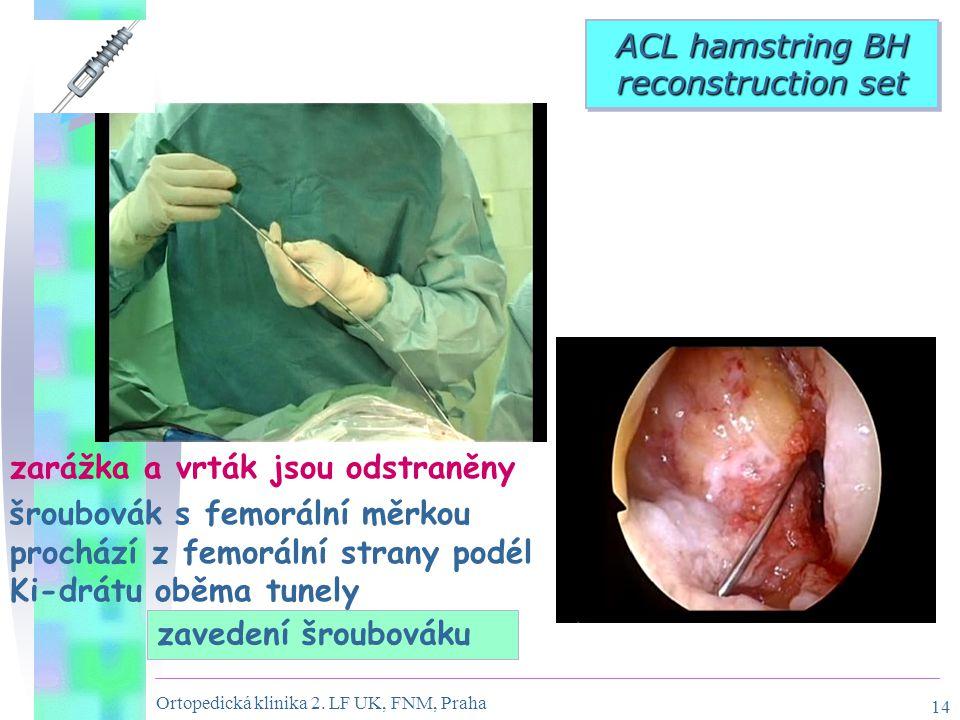 Ortopedická klinika 2. LF UK, FNM, Praha 14 zarážka a vrták jsou odstraněny šroubovák s femorální měrkou prochází z femorální strany podél Ki-drátu ob
