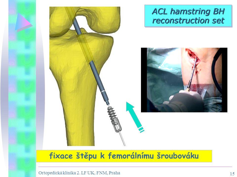 Ortopedická klinika 2. LF UK, FNM, Praha 15 fixace štěpu k femorálnímu šroubováku ACL hamstring BH reconstruction set