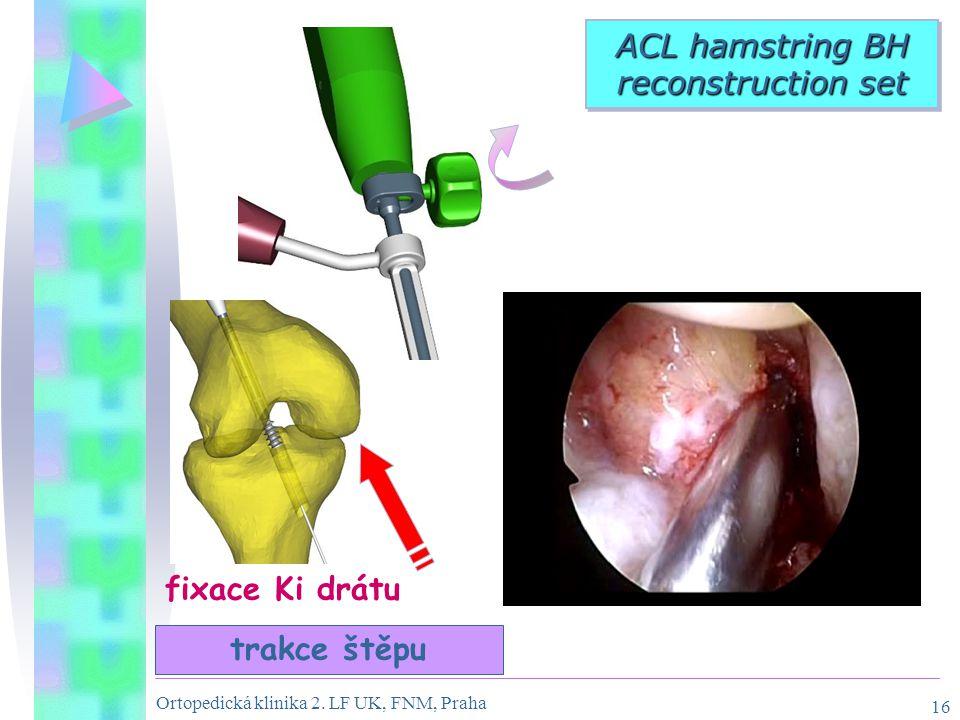 Ortopedická klinika 2. LF UK, FNM, Praha 16 trakce štěpu ACL hamstring BH reconstruction set fixace Ki drátu