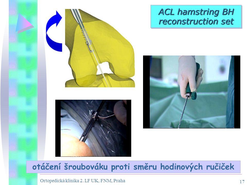 Ortopedická klinika 2. LF UK, FNM, Praha 17 otáčení šroubováku proti směru hodinových ručiček ACL hamstring BH reconstruction set